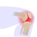Zdjęcie przestawia ból w kolanie